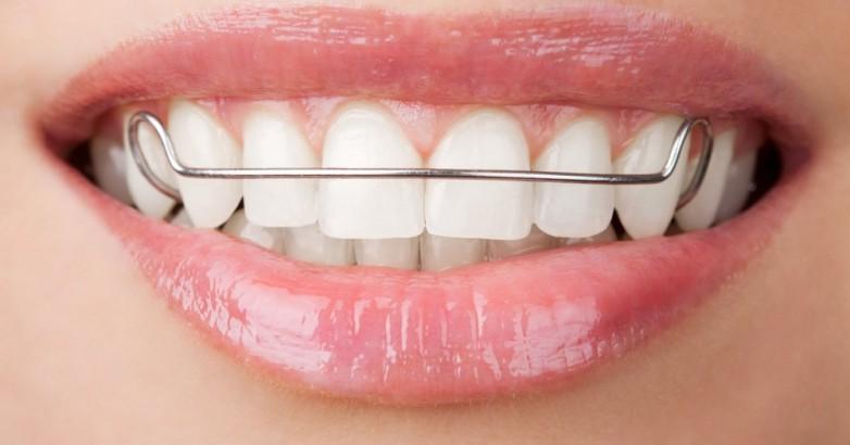 aparelho-movel-dentes